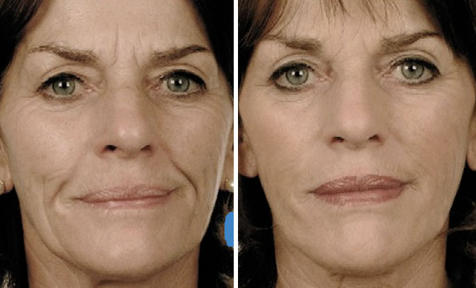 beforeafter_injectiblefacialfillers